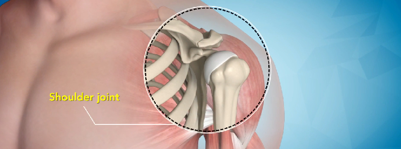shoulder joint replacement surgery in chembur mumbai